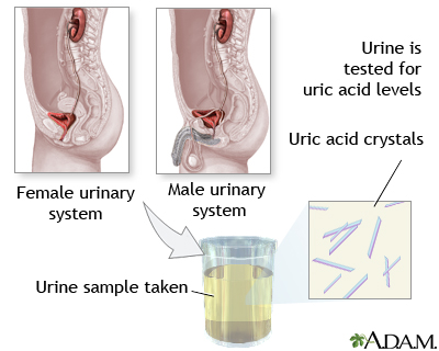 natural treatment for gout in fingers causes of increased production of uric acid reduce uric acid build up
